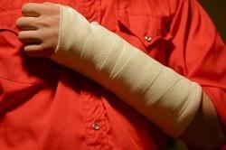 Частые переломы при саркоме
