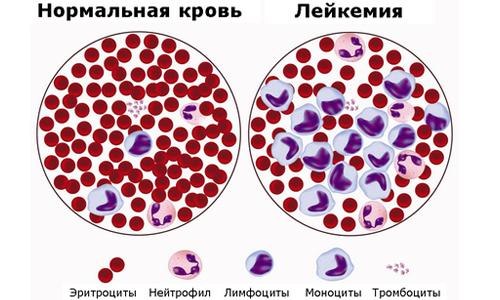 Нормальная кровь и лейкемия