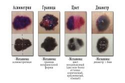 Основные 4 признаки меланомы