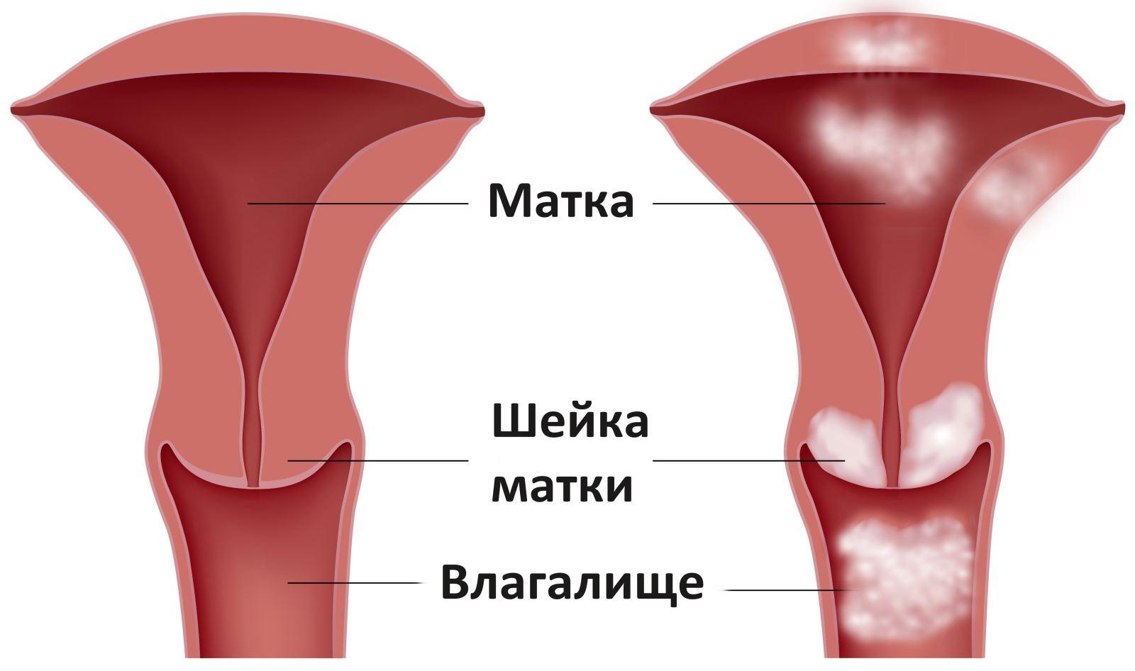 porno-s-negrami-dvoynim-proniknoveniem-smotret-onlayn