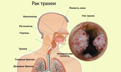 Развитие рака трахеи