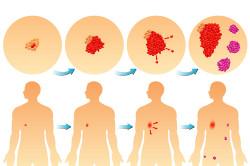 Развитие раковых опухолей