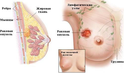 Схема рака молочной железы