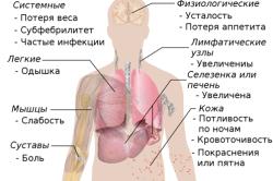 Признаки рака костного мозга