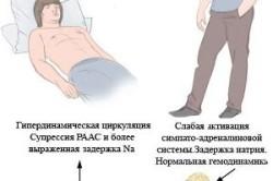Развитие асцита брюшной полости при раке печени