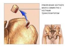 Хирургическая биопсия кости
