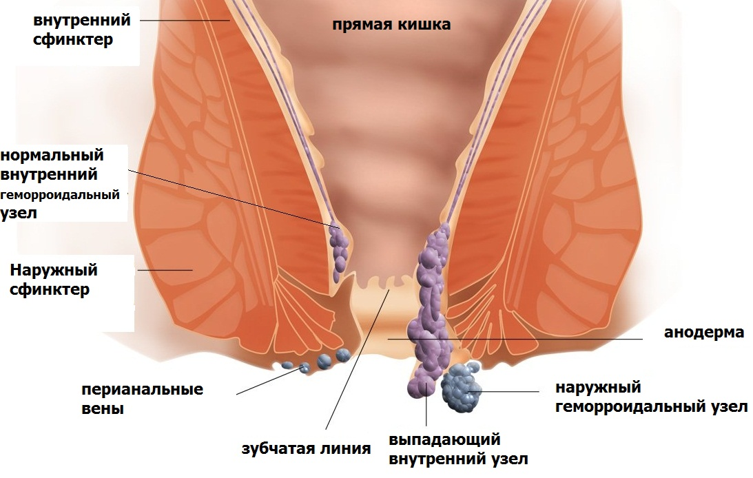 фото рака ануса