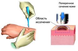 Процесс удаления меланомы