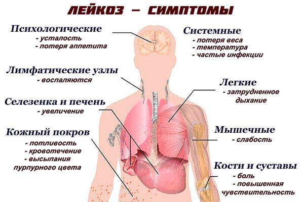 Острый лимфолейкоз симптомы