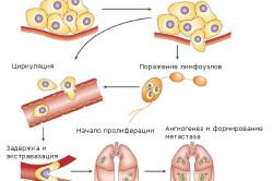 Процесс формирования метастаза