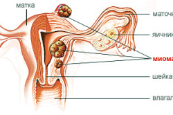 Схема миомы матки
