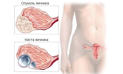Киста и опухоль яичника