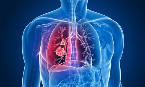 Раковая опухоль в легком