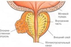 Злокачественная опухоль уретры