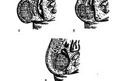 Локализация крестцово-копчиковых тератом