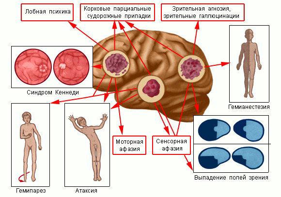 Пролактинома  причины симптомы диагностика и лечение