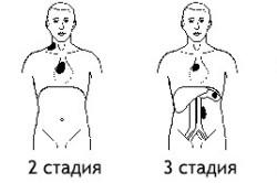 Стадии лимфогранулематоза и области поражения