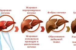 Стадии рака печени