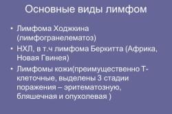 Основные виды лимфом