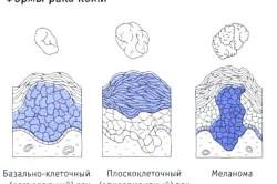 Разновидности рака кожи