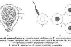 Схема полного пузырного заноса