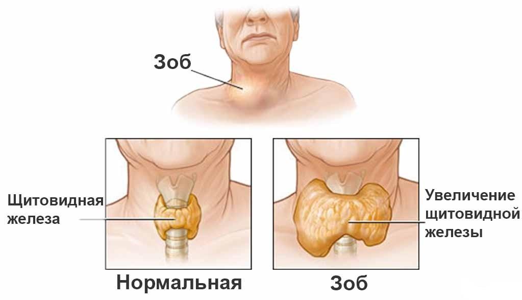 боль при глотании в горле без температуры