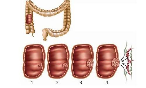 Этапы развития рака кишечника