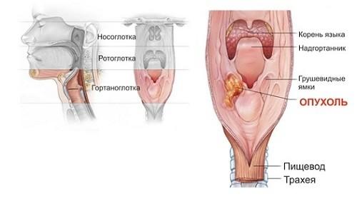 Злокачественная опухоль горла