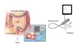 Колоноскопия для уточнения диагноза