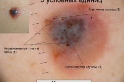 Внешние признаки меланомы