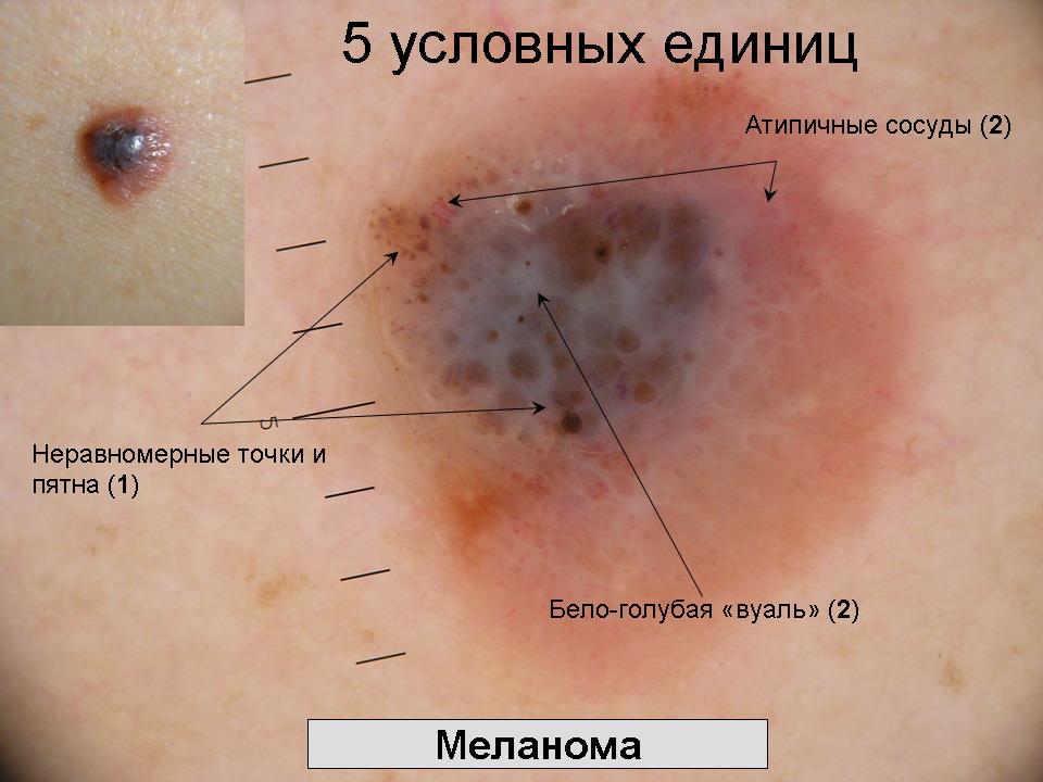 Боли в левой части живота на ранних сроках беременности