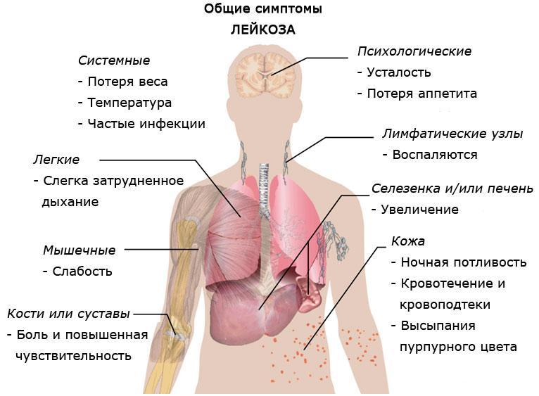 Лейкемия Миелоидная фото