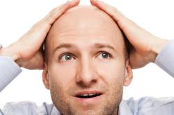 Выпадение волос при прохождении лучевой терапии