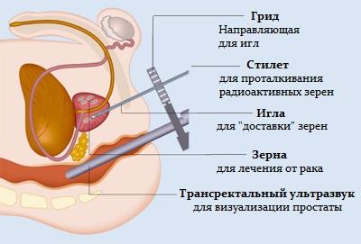 Комплексное лечение хронического простатита стоимость