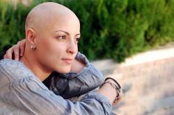 Облысение при химиотерапии
