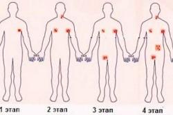 Этапы лимфомы Ходжкина