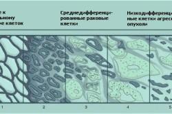 Развитие рака предстательной железы по Глисону