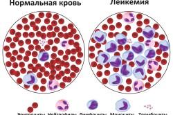 Кровь здорового человека и больного лейкемией