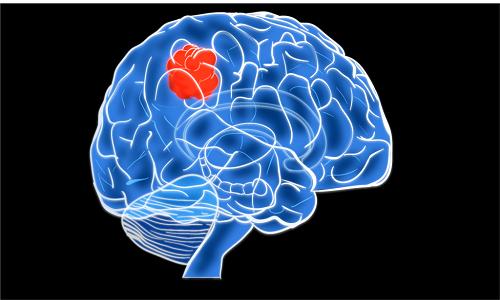 Опухолевое поражение головного мозга