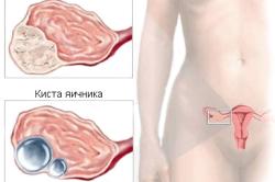 Отличие опухоли от кисты яичника