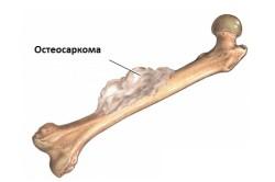 Внешний вид остеосаркомы