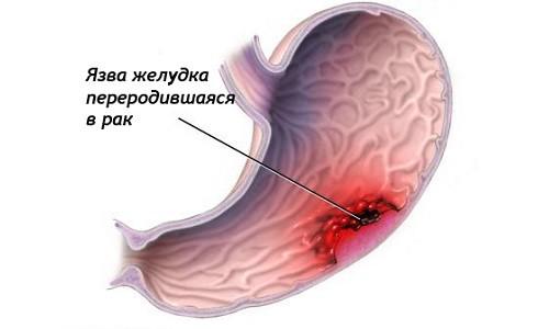 Рак желудка, переродившийся из язвы