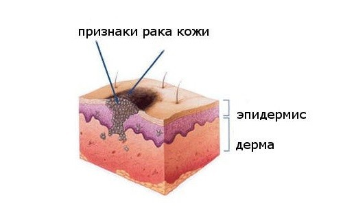 Злокачественное образование на коже