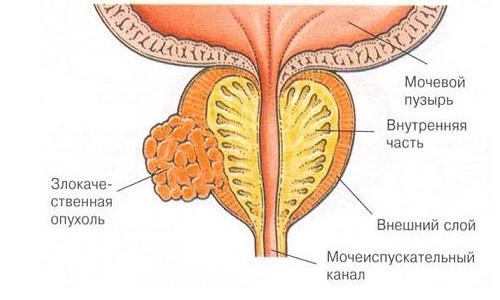 Схема рака простаты