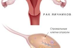 Схема рака яичников