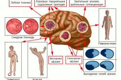 Самые частые очаговые неврологические симптомы рака мозга в последней стадии