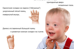 Болезнь Дауна как причина лейкоза