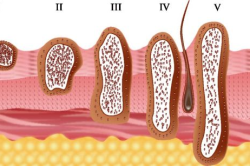 Стадии развития рака кожи