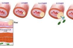 Стадии развития рака пищевода