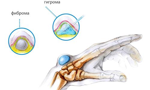 Подкожные опухоли на руке